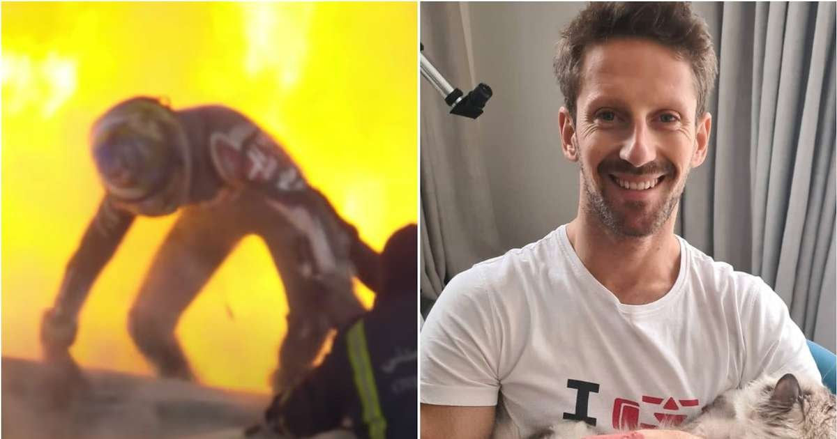 F1's Roman Grosjean shows pictures of his hand injuries after horror crash in 2020