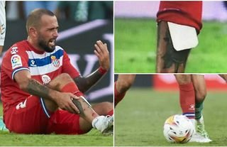 Aleix Vidal left with bone sticking out after thinking cardboard shin pads were a good idea
